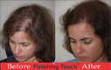 Hair Patches for Alopecia