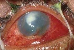 Ophthalmic Emergencies