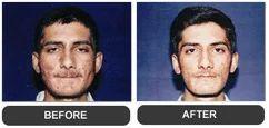 Pimples Or Acne Treatment Services