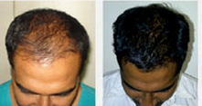 Hair Loss Treatment Services