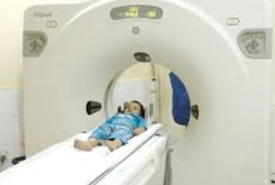 Spiral CT Scan