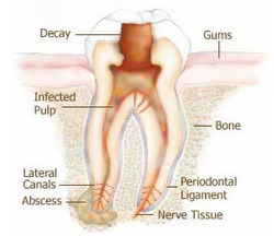 A Deep Infection Root Canal Treatment
