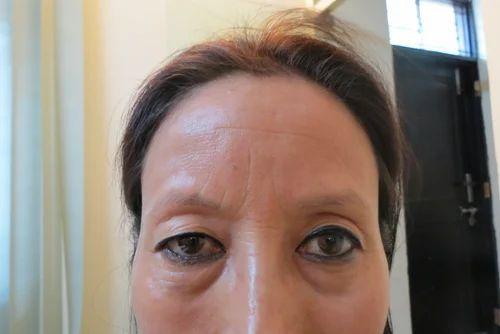 Eyebrow Hair Transplant, आईब्रो ट्रांसप्लांट की सेवा ...