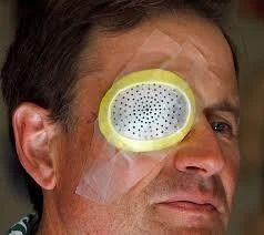 No Patch Cataract Surgery