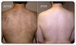 Laser Hair Removal Back Treatments
