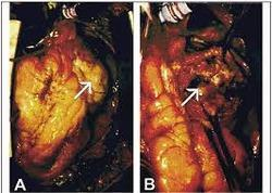 Cardiac Arrythmia Surgery