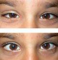 Oculoplasty Services