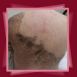 Laser Hair Removal In New Delhi By Dermaclinix The Complete Skin