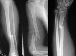 Elderly adults fractures