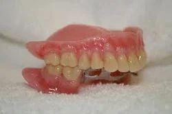 Periodontal Dental Treatment Services