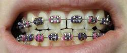 Braces, Fixed Orthodontic Treatment