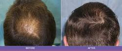 FAQs  Hair Transplantation