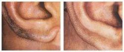Unisex Ear Laser Hair Removal Treatment
