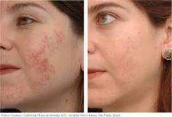Acne Laser Treatment In India