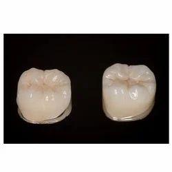 Dental Crowns In Chennai Tamil Nadu India