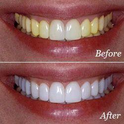 Teeth Whitening In Chennai