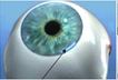 Microincision Cataract Surgery Service