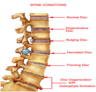 Orthopaedic Condition Spondylosis Service Provider From