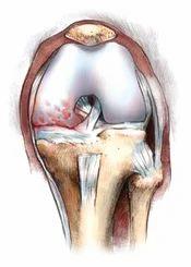 Partial Knee Arthritis Service