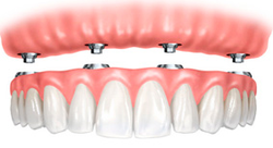 Advanced Implantology Solutions
