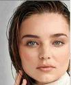 Female Hair Transplant