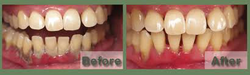 Periodontia (Gum Therapy)