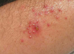 fungal infection treatment in india