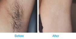 Permanent Hair Reduction By Diode Laser