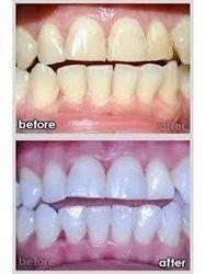 Bleaching Or Teeth Whitening Treatment