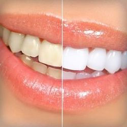 Teeth Cleaning And Whitening Service In Cit Nagar Chennai Tooth