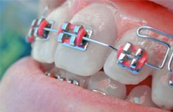 Dental Wing