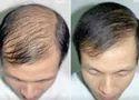 Hair Problems Treatment