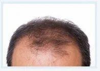 Follicular Unit Hair Transplant