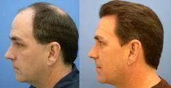 Advance Hair Treatments