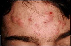 Acne/ Pimples Treatments