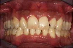 Mild Periodontitis