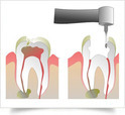 Endodontics Treatment Service