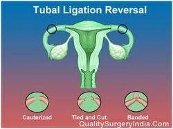 Tubal Ligation Reversal In New Delhi New Delhi Id 6396257112