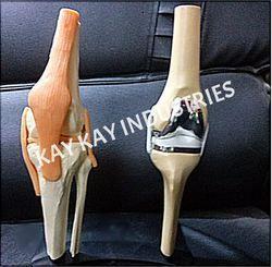 Fiber Knee Joint