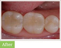 Tooth Coloured Fillings Service