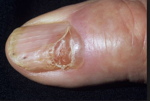 Nail Diseases Treatment Skin Hair Care Solutions In Vikaspuri