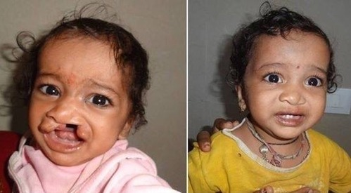 Free Cleft Lip & Palate Surgery Under Smile Train India in