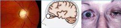 Neuro Ophthalmology
