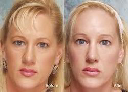 Eye Lid Surgery Service