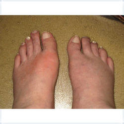 can you get gout in the back of your knee uric acid foot swelling low uric acid diet for dogs