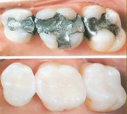 Tooth Coloured Restorations