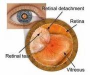 Retinal Reattachment Surgery Services
