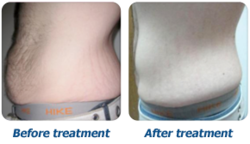 Weight loss Therapies, Weight Loss Treatment - VLCC Health