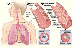 Asthma Medical Treatment Services