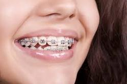Braces Treatment Services